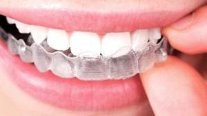 Braces Seattle Wa Sorensen Orthodontics
