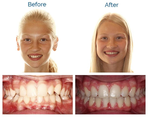 Chloe Before and After Sorensen Orthodontics in Seattle, WA